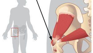 nyaki fájdalom váll fájdalom artrózis kezelése a chrysostomban