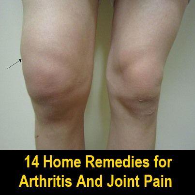 arthrosis kezelés astrahanban
