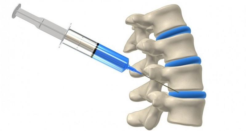 gyógyszerek a lumbosacrális osteochondrozisra