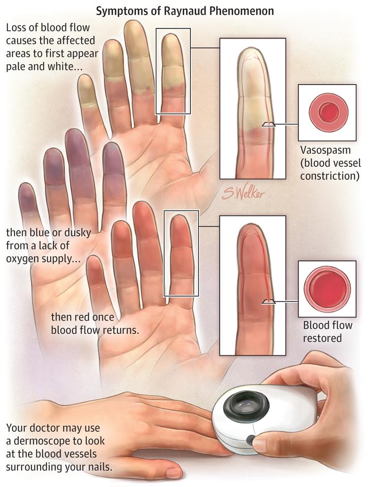 az ívek ízületi gyulladása mágneses kezelés ízületi fájdalmak kezelésére