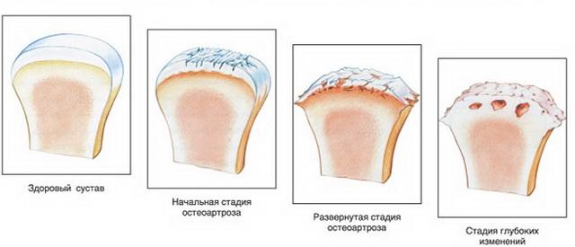 ízületi fájdalom teraflex a)