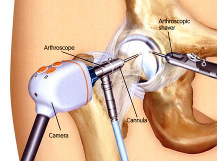 a csípőízület fájdalmainak kezelése kollagén ízületi fájdalmak kezelésére
