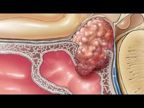 ízületi fájdalom agyalapi mirigy adenomával a térdízület ragasztásainak részleges törése