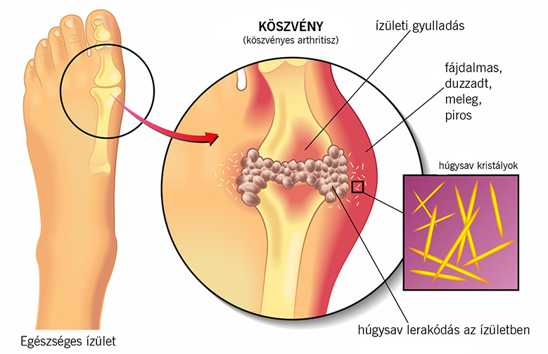 az izületi kapszula és a környező szalagok gyulladása