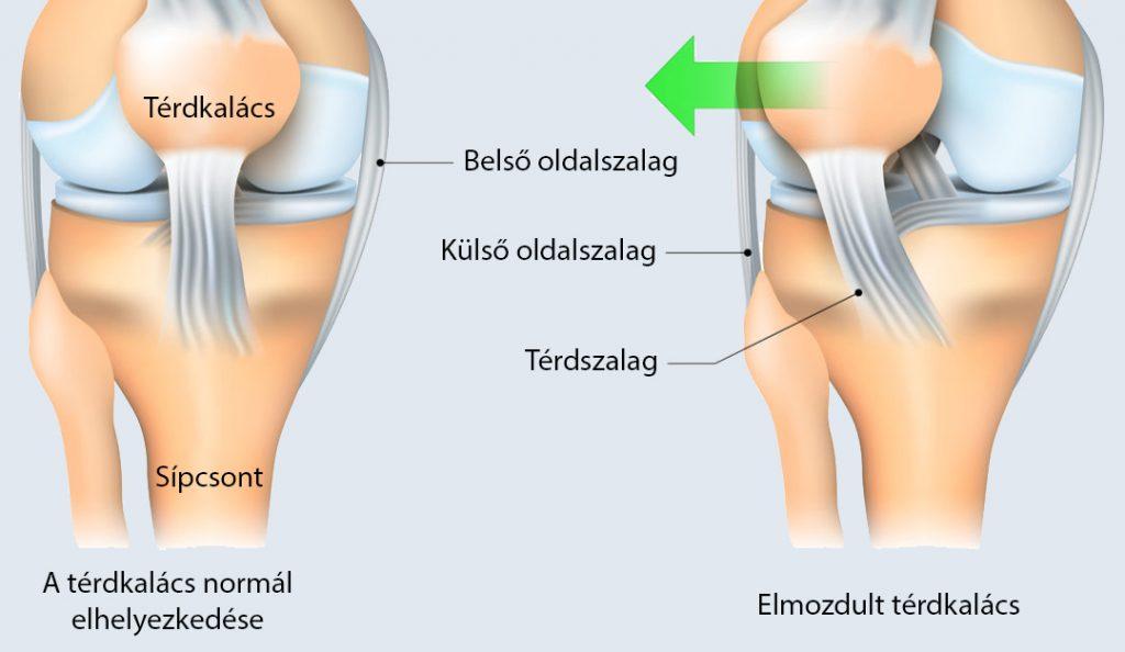 a térdízület külső oldalsó ágának károsodása)