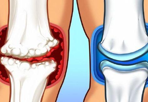 test reakció az ízületi fájdalomra