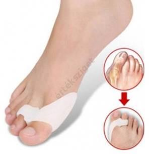 lábujjak artrózisos kezelése)