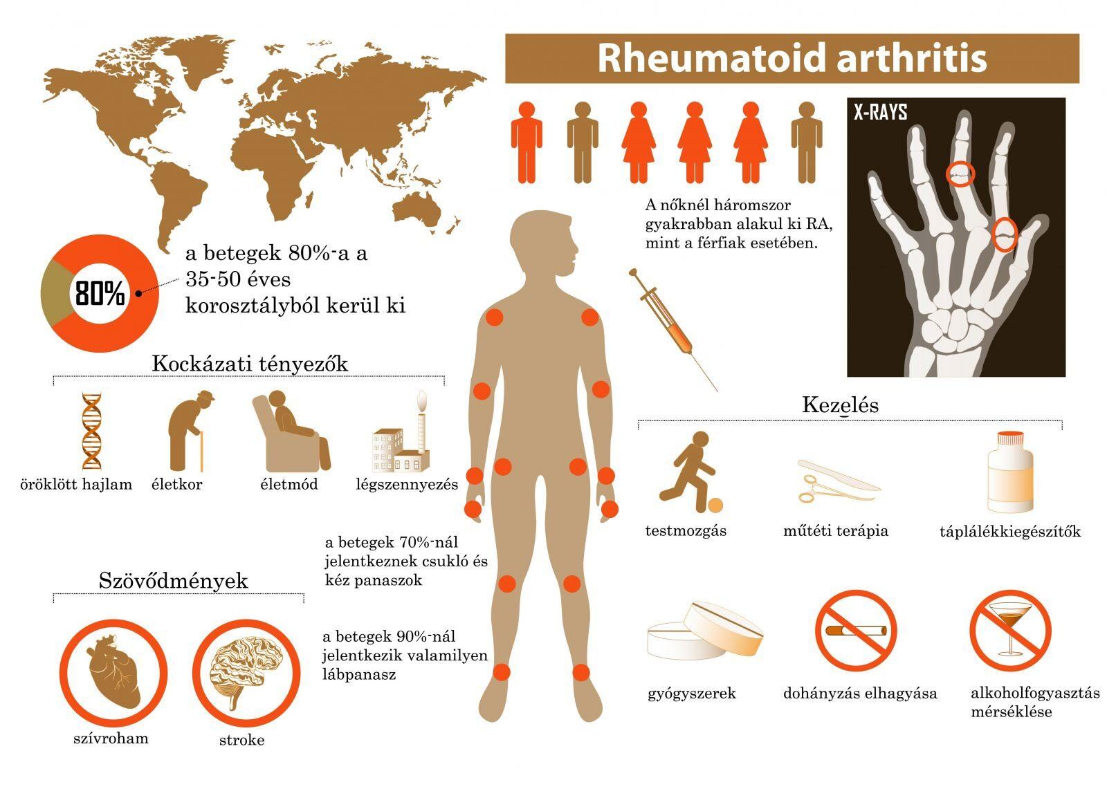 csukló artritisz gyógyszeres kezelés)