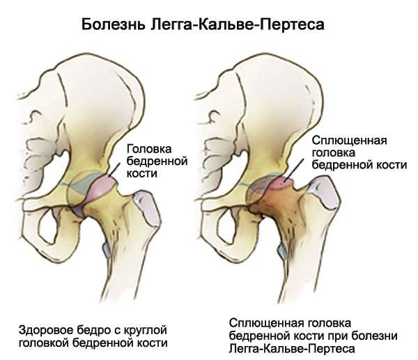 a boka ízületének deformáló ízületi jelei