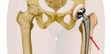 csípőízület ízületi tünete)
