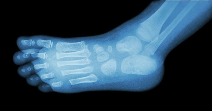 ízületi fájdalom a gyermekek lábában)