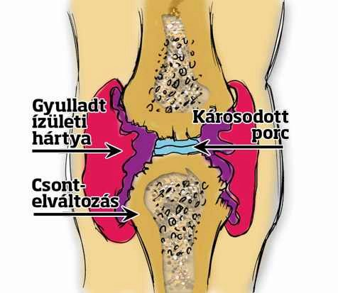 a láb ízületeinek 2. fokú ízületi gyulladása