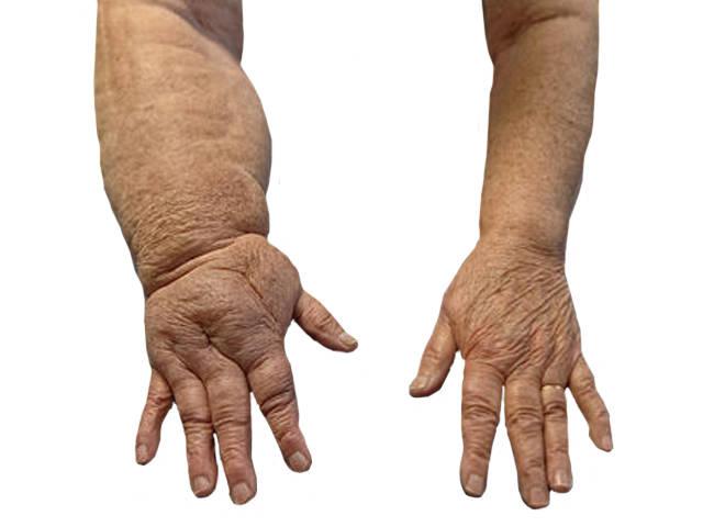 rheumatoid arthritis fájdalmas kar)