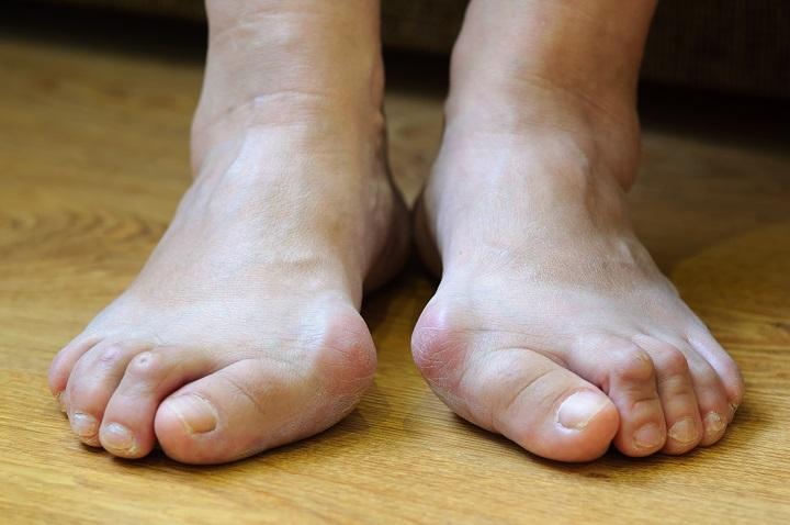 hogyan kell kezelni az ujjak és a lábujjak ízületeit