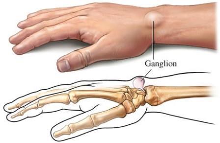 térdízület bursitis és synovitis kezelése
