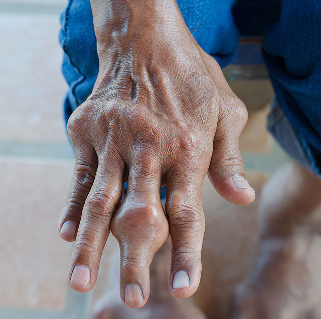 fáj a kéz és a térd ízületei
