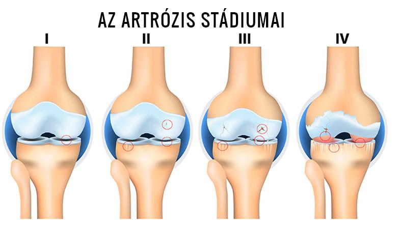 a jobb és a bal térd artrózisa)