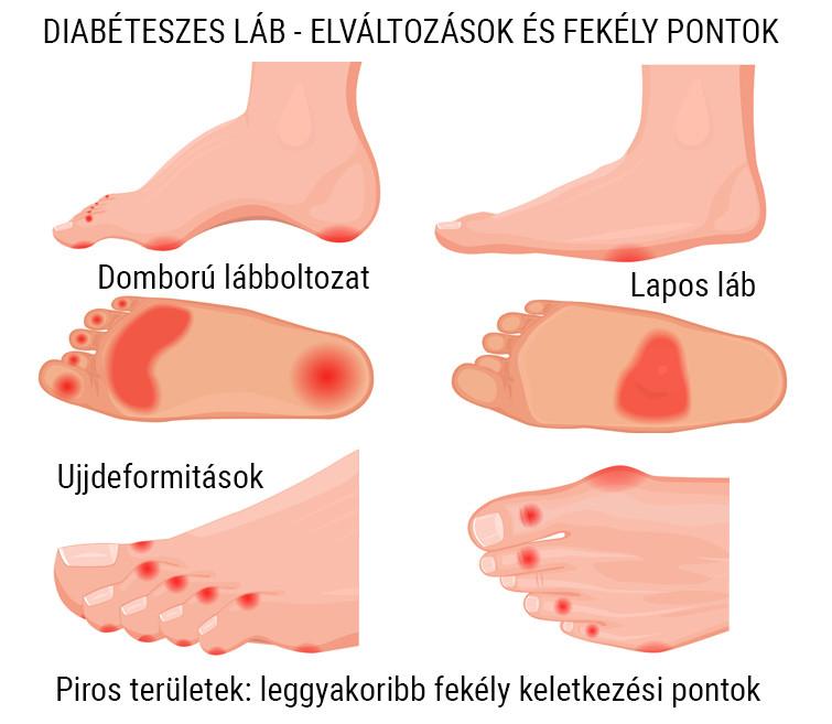 a láb posztraumás artrózisának kezelése