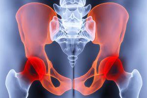 a csípőízület coxarthrosis komplex kezelése)