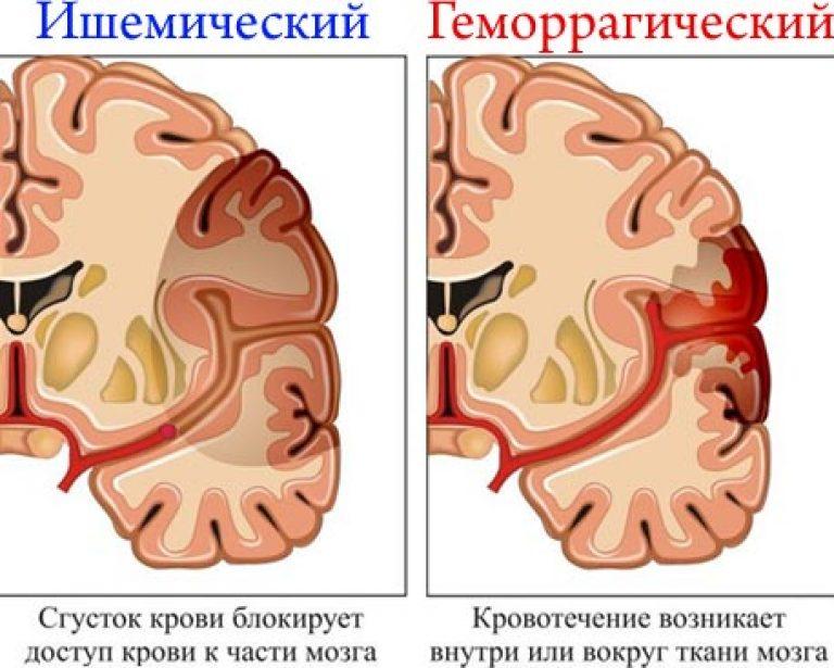"""Stroke – nemcsak az agyat érintő """"katasztrófa"""""""