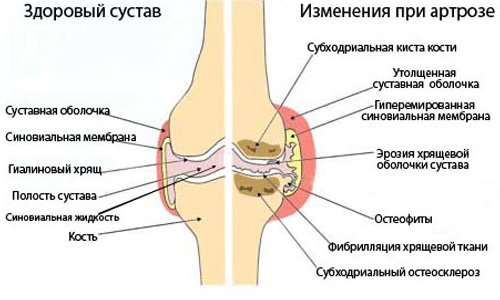 az egyik ízület deformáló artrózisának oka)