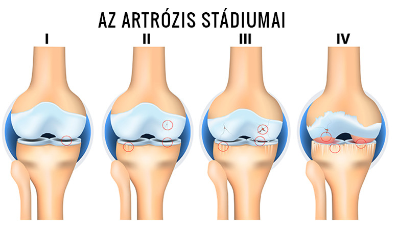 poszttraumatikus boka artrózis