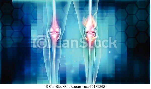 hátfájás a boka térdízület kezelés keringési elégtelensége