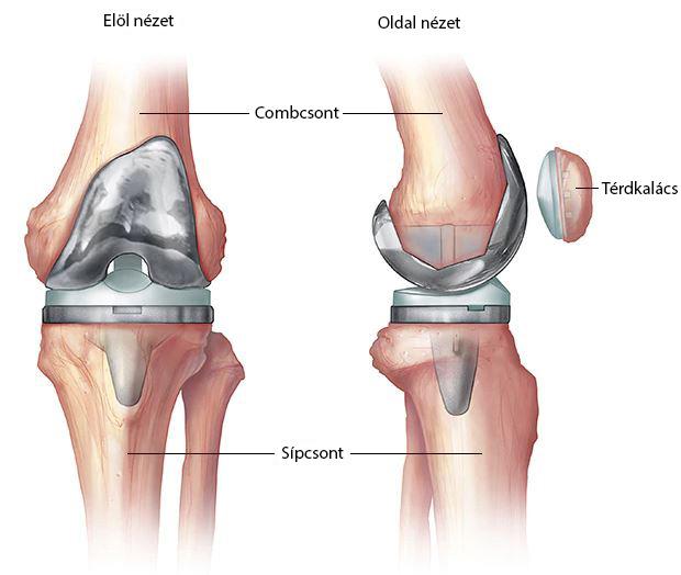 lézeres terápiás technika a térdízület artrózisához)