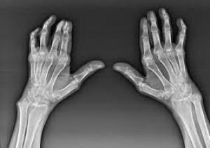 a kezek falának ízületei deformáló artrózisa lehetséges a kenőcsök melegítése nyaki osteochondrozissal