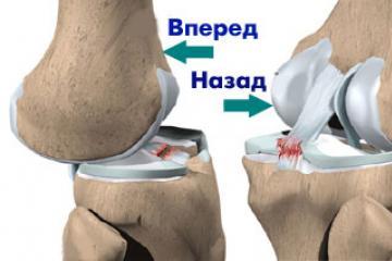 térdkárosodás hemarthrosis)