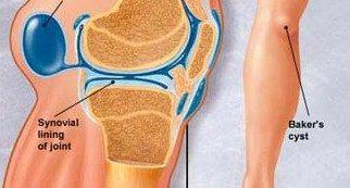 a térd artrózisának diagnosztizálása 1 fokos)