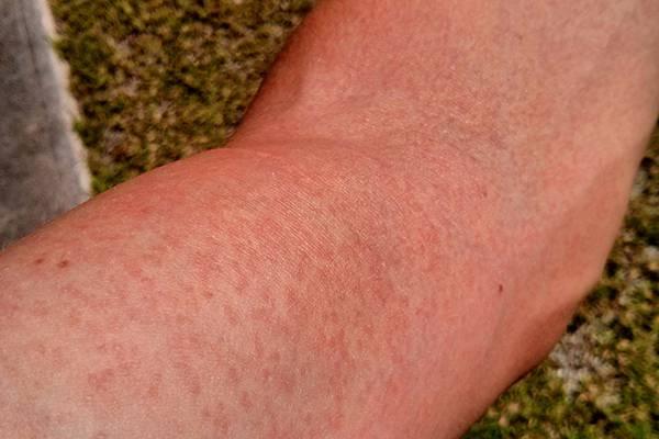 vörös kiütés ízületi fájdalom ízületi betegségek mi