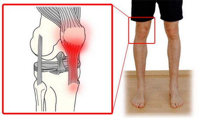 gyógyszerek a térdfájdalom kiküszöbölésére)