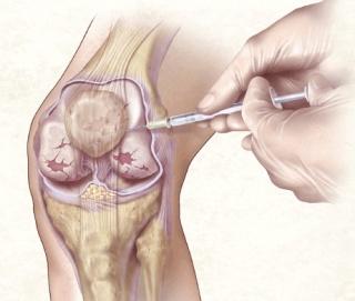 térdízületi szuprapateláris bursitis és kezelése