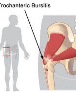 fájó csípőízületi pattanások