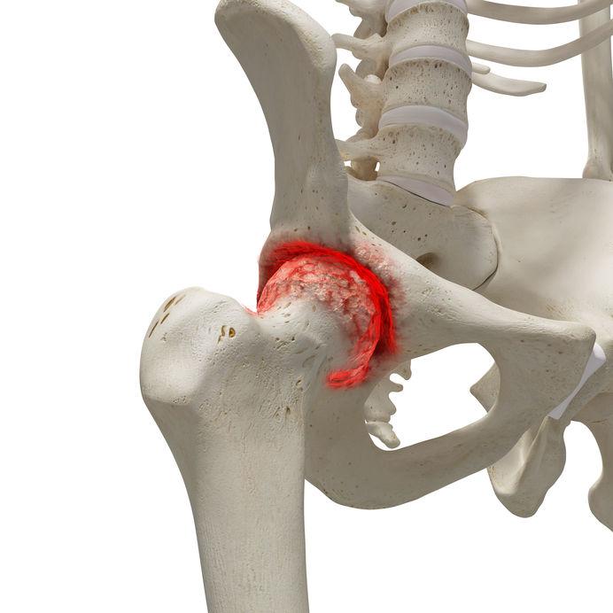 fizioterápia operált csípőízületi artrózisban)