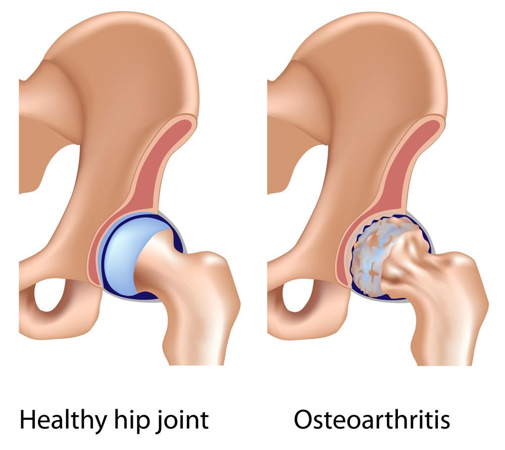 ízületi fájdalom, csípőízület coxarthrosis