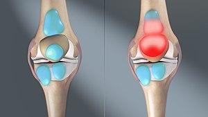 a lábak ízületei fájnak futás közben fájó váll- és könyökízület