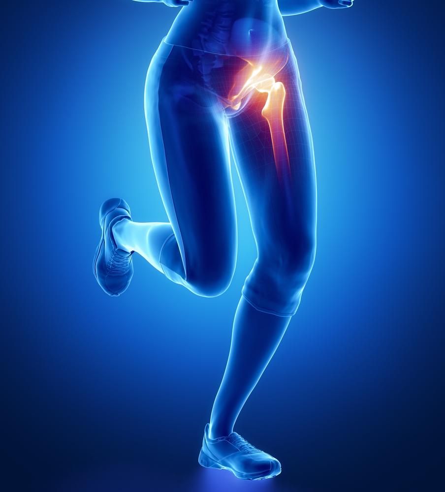 helyi fájdalom a csípőízületben