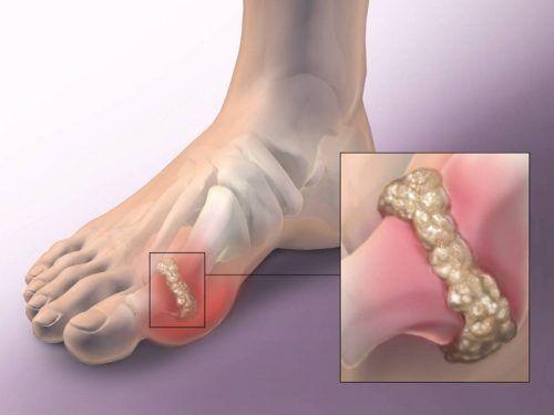 a láb ízületi fájdalma