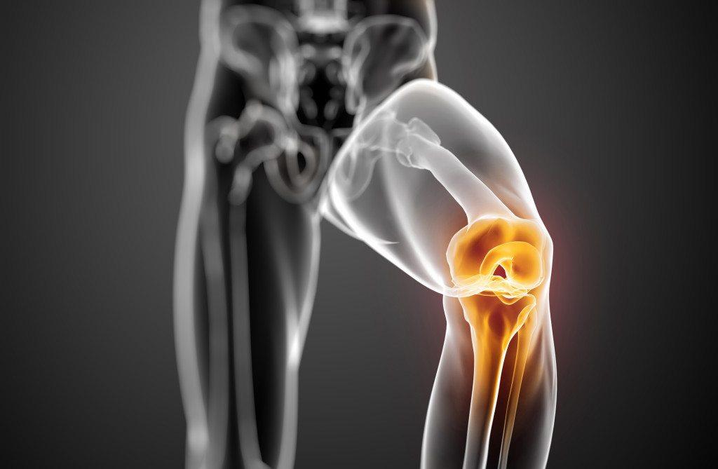 lézeres kezelés a térd artrózisában)