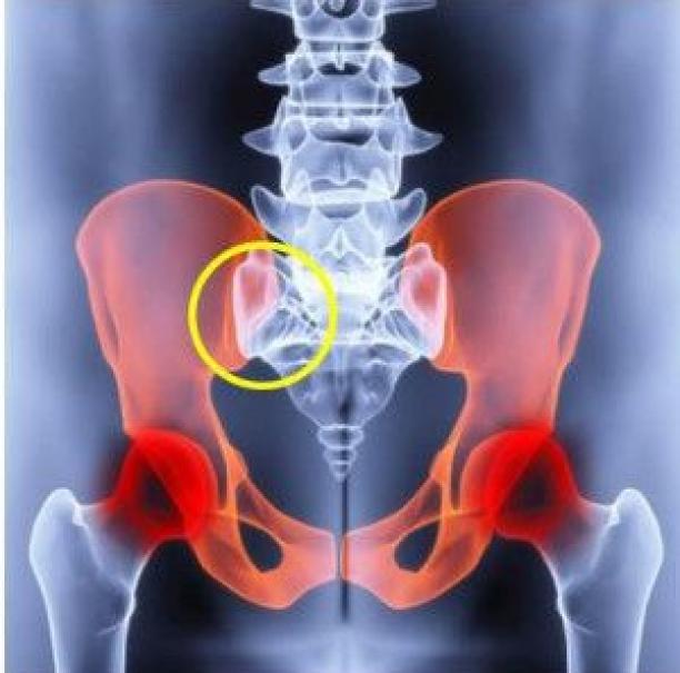 sacroiliac ízületi arthrosis)