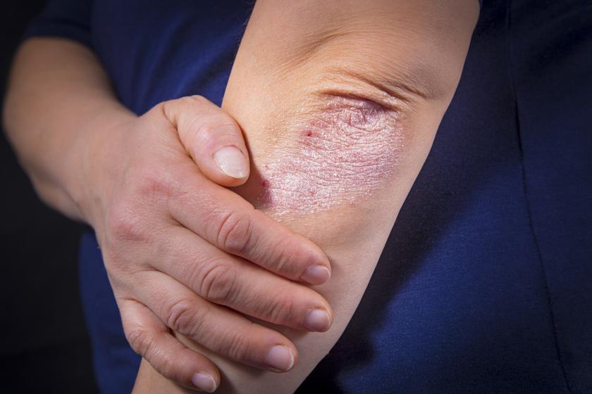 ízületi fájdalom és viszkető bőr okai