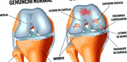Csak a térd osteoarthritisét kezelem)