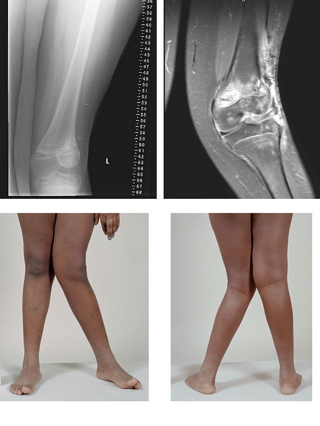 csípő osteoarthritis kórtörténetét