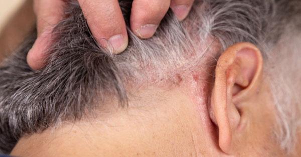 neurodermatitis ízületi fájdalom