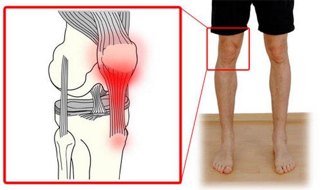 a láb kicsi ízületeinek deformáló artrózisa 2 fokkal