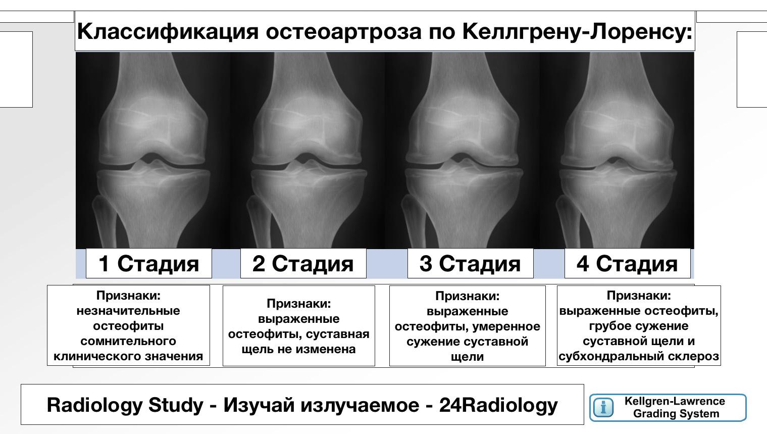 остеоартроз классификация)