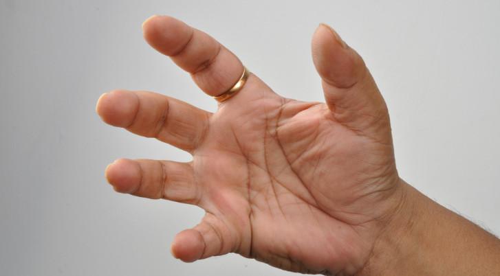 fájdalom a középső ujj középső ízületében