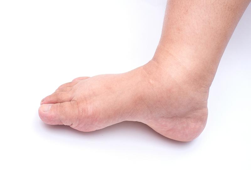 hogyan lehet kezelni a lábak felnőtt izületeit vegyél közös gyógyszereket